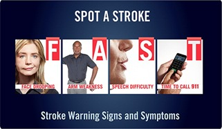 stroke warning signs FAST image